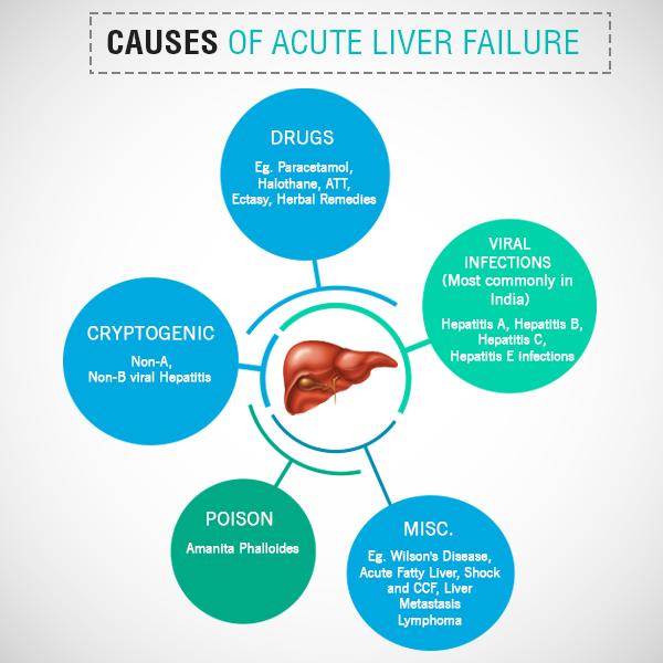 what can cause acute liver failure